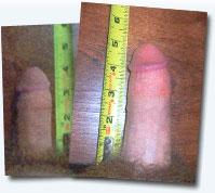 Laugmentation dans lépaisseur du membre sexuel
